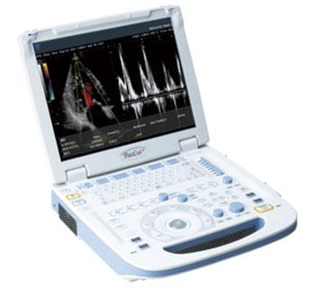 超音波測定装置